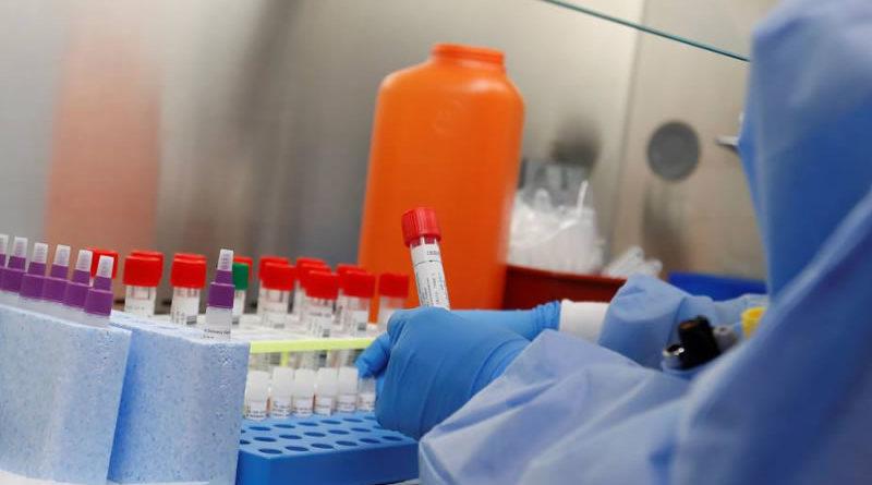 Uruguay procesó 3.819 test de coronavirus de los cuales 338 resultaron positivos